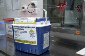 Una donación de tejidos posibilitó dos trasplantes de córneas en Paraná